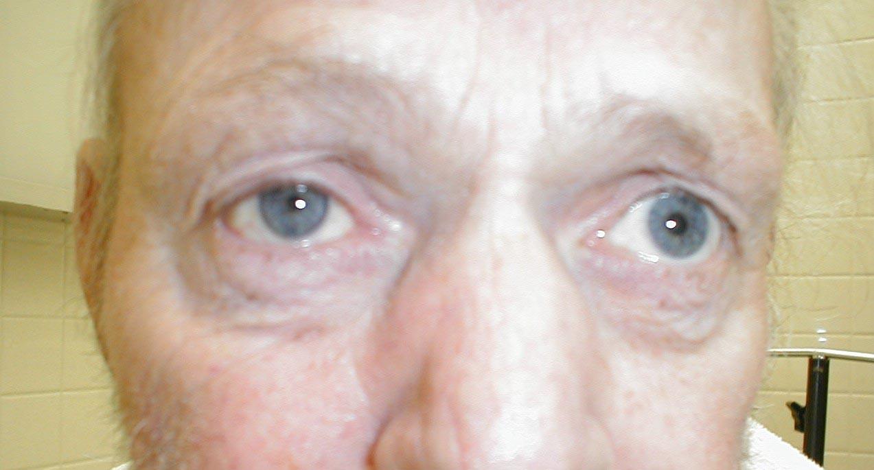 horner u0026 39 s syndrome physical examination