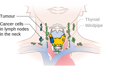 Diagram showing stage N1b thyroid cancer CRUK 243.png
