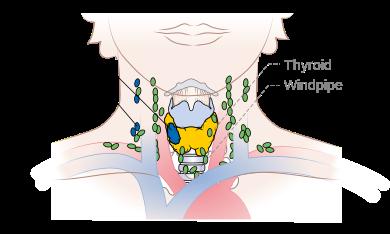 Follicular thyroid cancer staging - wikidoc