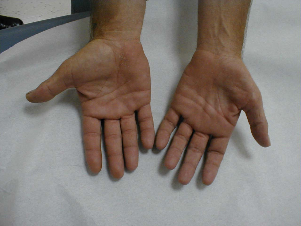 Hand Muscle Atrophy