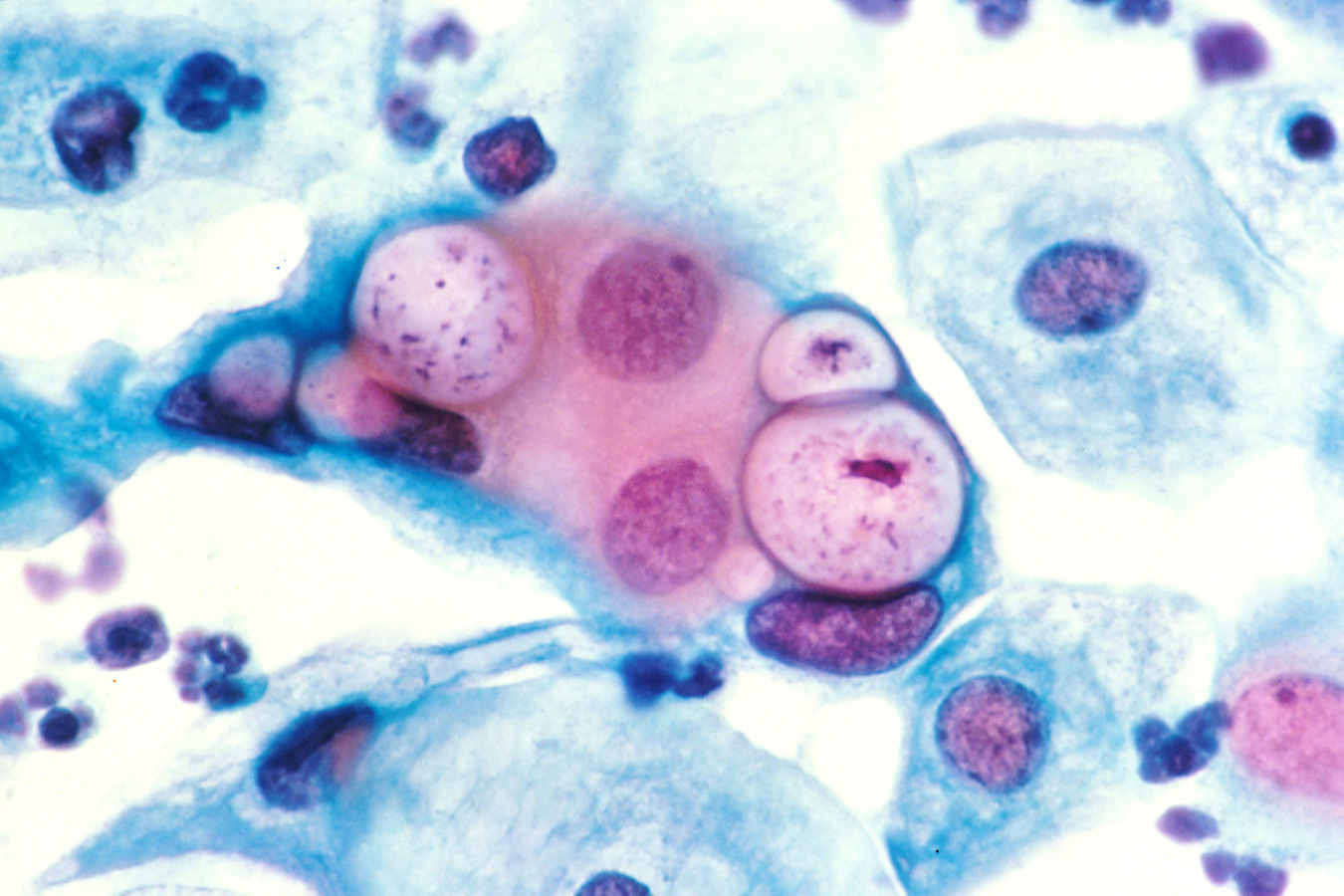 Pap smear showing clamydia in the vacuoles 500x H&E.jpg