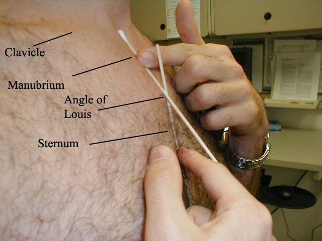 Angle Louis on Angle Needle Valve