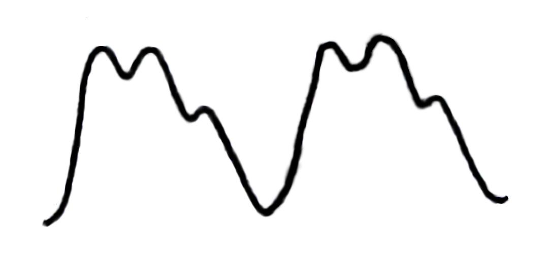 Bisferiens Pulse