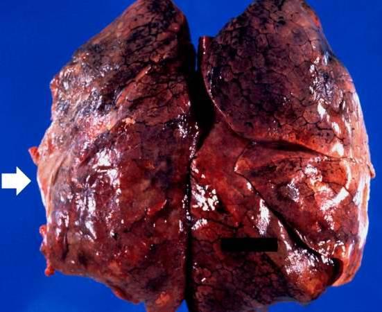 Radiation Fibrosis