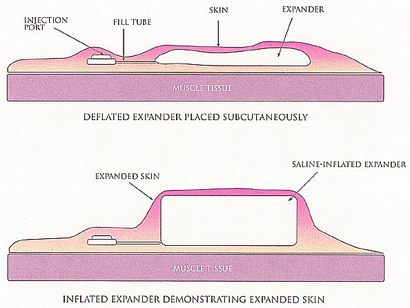 Tissue Expansion