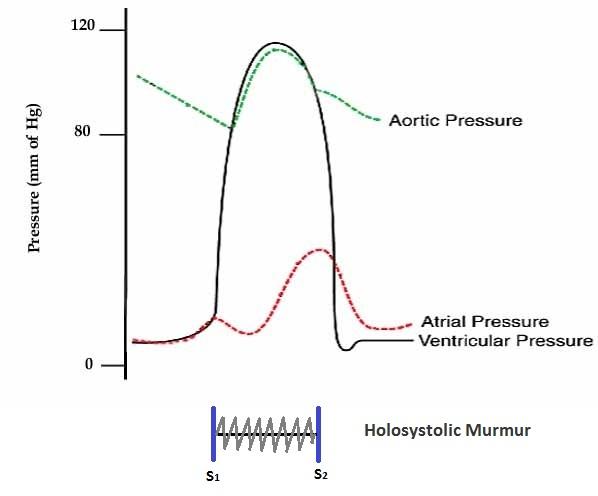 Dissertation On Aortic Regurgitation