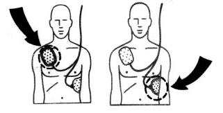 anterio apical placement of external defibrillator electrodes when defibrillation is unsuccessful anterio posterior placement is also sometimes attempted