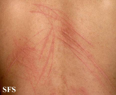Online Dermatology - Dermographism (Dermatographic Urticaria)