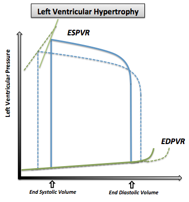 The pressure volume loop in left ventricular hypertrophy. Note that the normal pressure volume diagram is in dotted line.