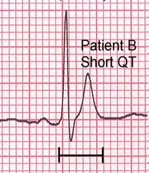 Short QT interval.jpg
