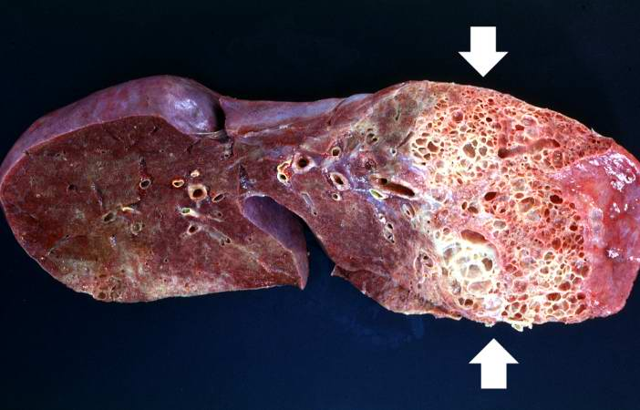 Scleroderma Lungs Fibrosis