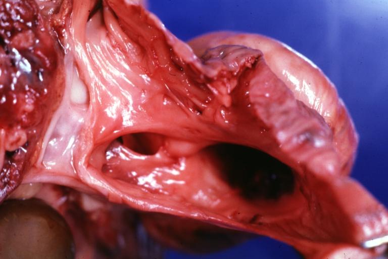 Ventricular Septal Defect Pathophysiology