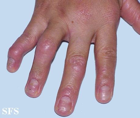 Natural Treatment Psoriasis Arthritis