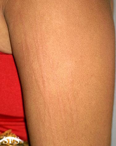 dermatographic urticaria #11