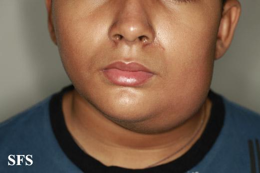 Pus - Symptoms, Causes, Treatments - Healthgrades