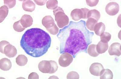 Atypical Addison S Disease In Dogs