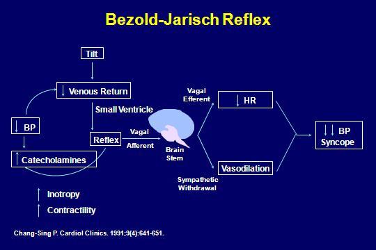 bezold-jarisch reflex