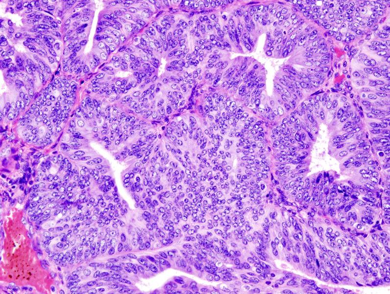 endometrium rák szép cks