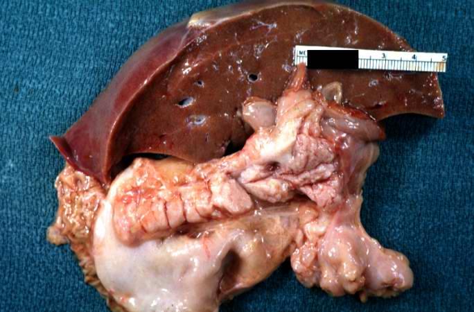 pathophysiology of cystic fibrosis pdf