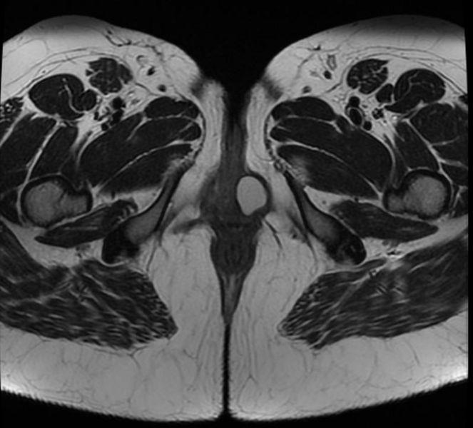 Bartholin's gland cyst 002.jpg
