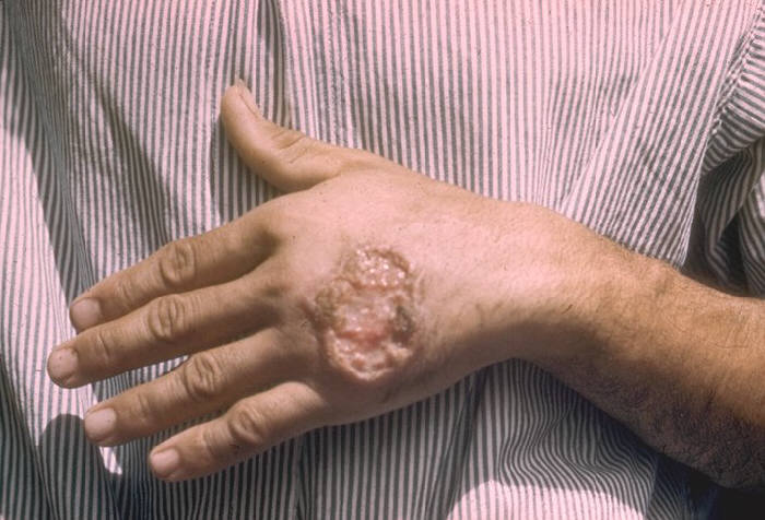 Cutaneous leishmaniasis.jpg