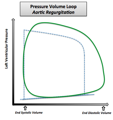 Pressure-volume loop in aortic regurgitation. Note that the normal pressure-volume diagram is in dotted line.