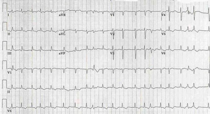 intraventricular conduction delay ekg examples
