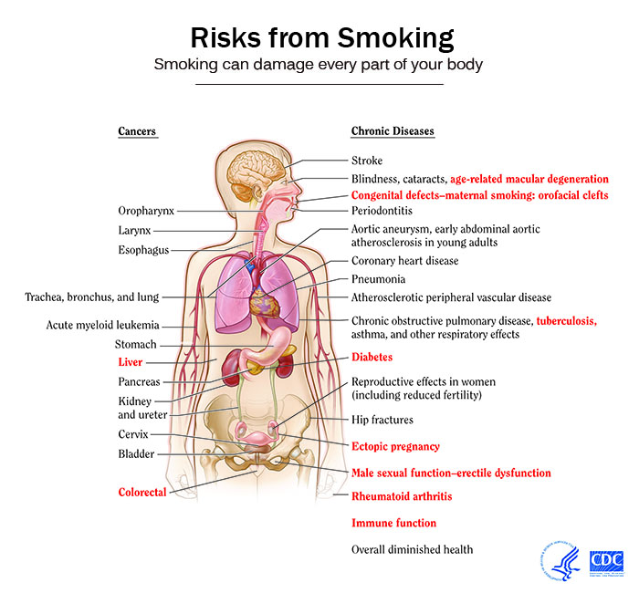 smoking cessation wikidoc diagram of stomach and heart diagram of stomach and body #3