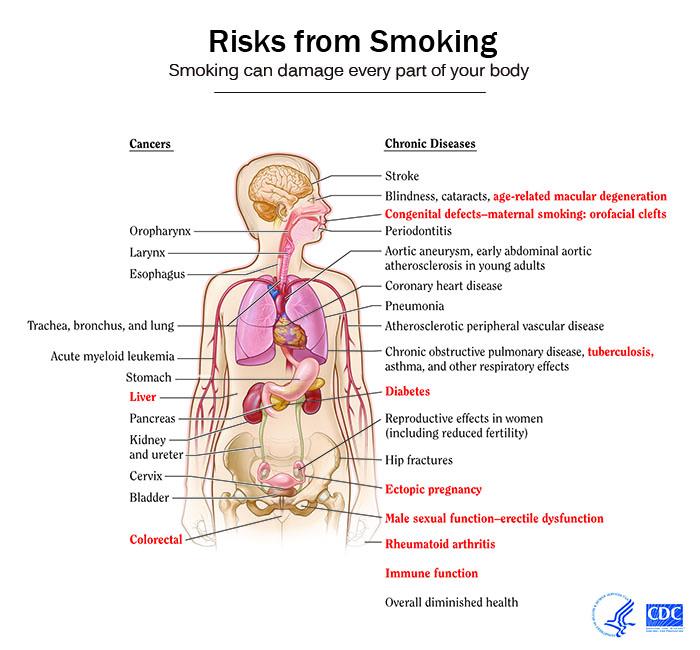 Smoke Cardiovascular Health May Impact Brain