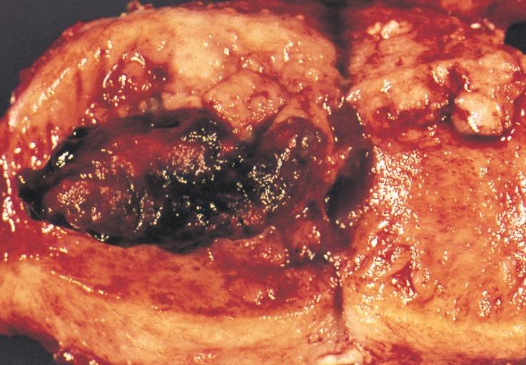 Endometrial Uterus Cancer