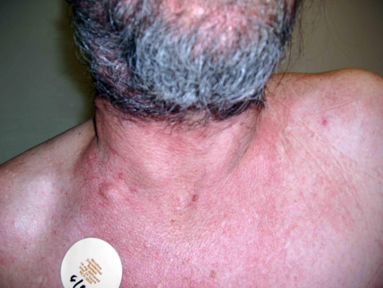 Image Result For Cancer Symptoms Bone
