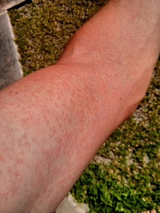 rash on arm due to Zika virus - By FRED - Own work, CC BY-SA 3.0, https://commons.wikimedia.org/w/index.php?curid=30734915