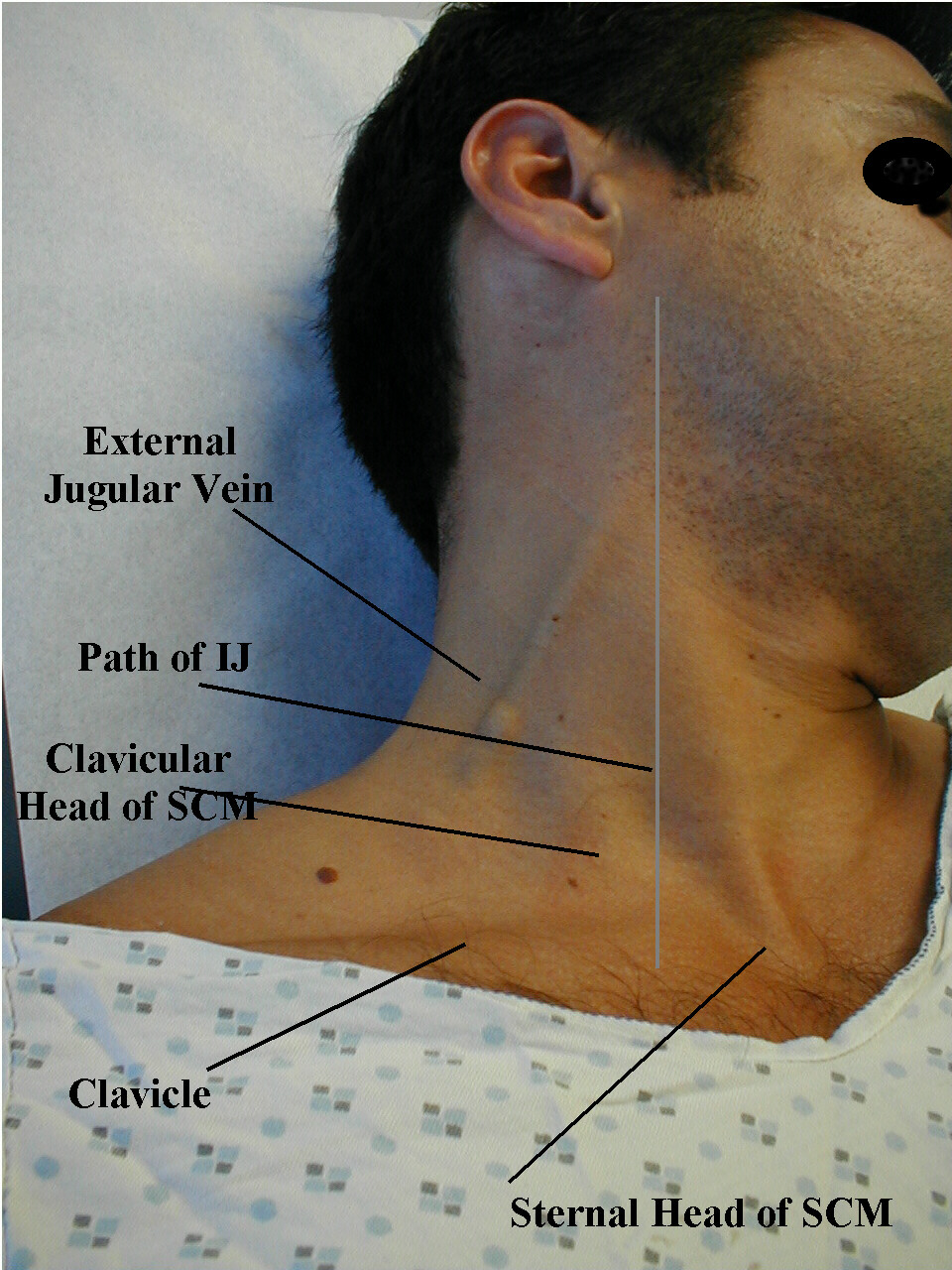 Jugular venous pressure 001.jpg
