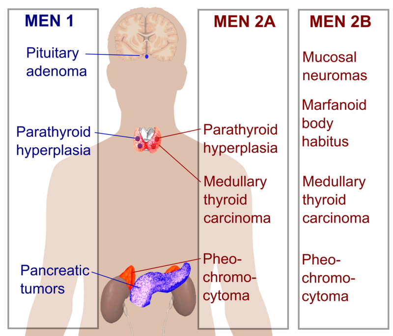 Presentations of Multiple endocrine neoplasia.