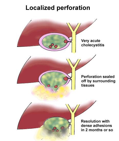 Gallstone Disease Natural History  Complications And Prognosis