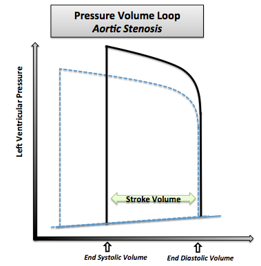Pressure-volume loop in aortic stenosis. Note that the normal pressure volume diagram is in dotted line.