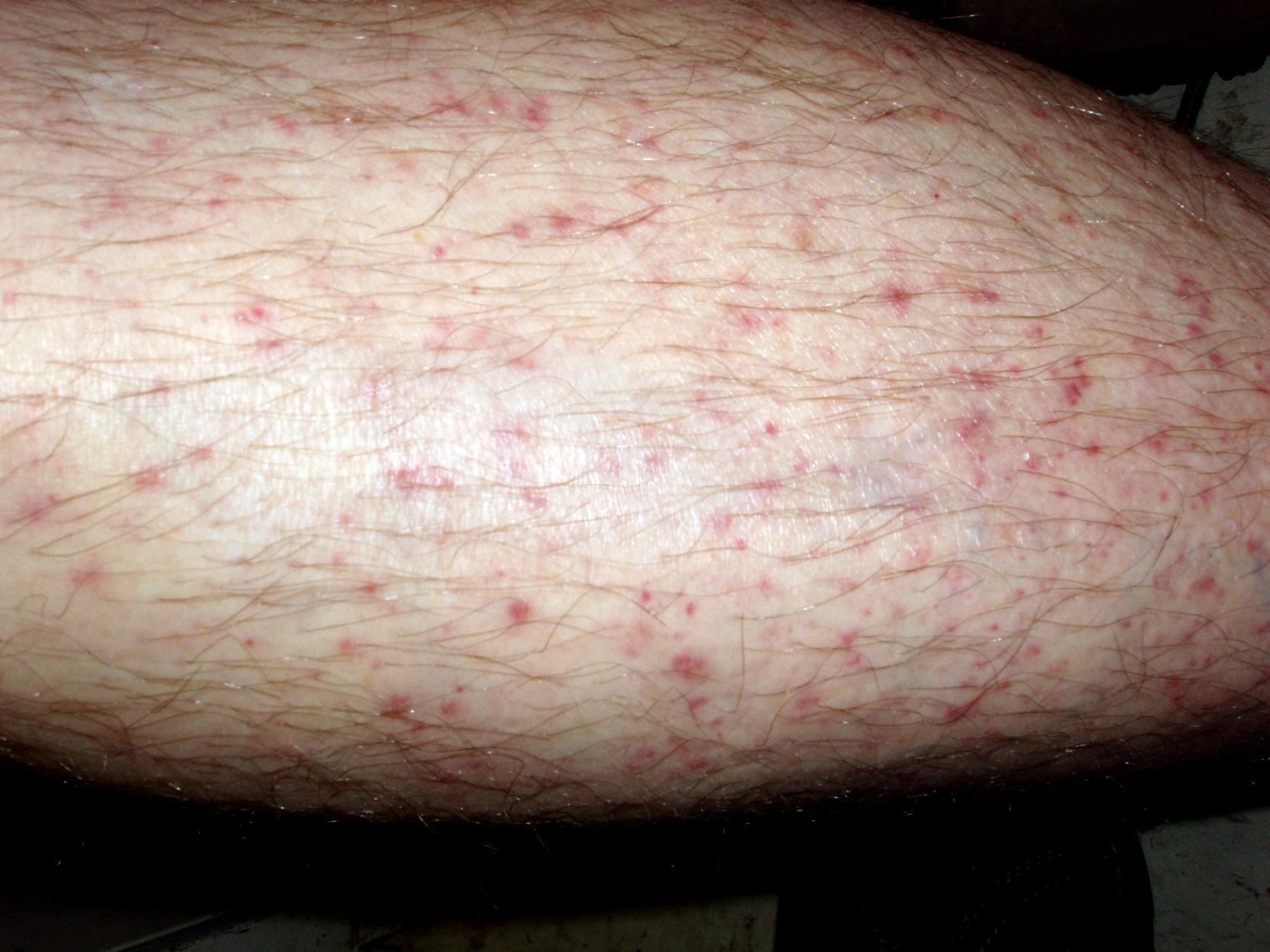 Vasculitis and lupus | National Resource Center on Lupus