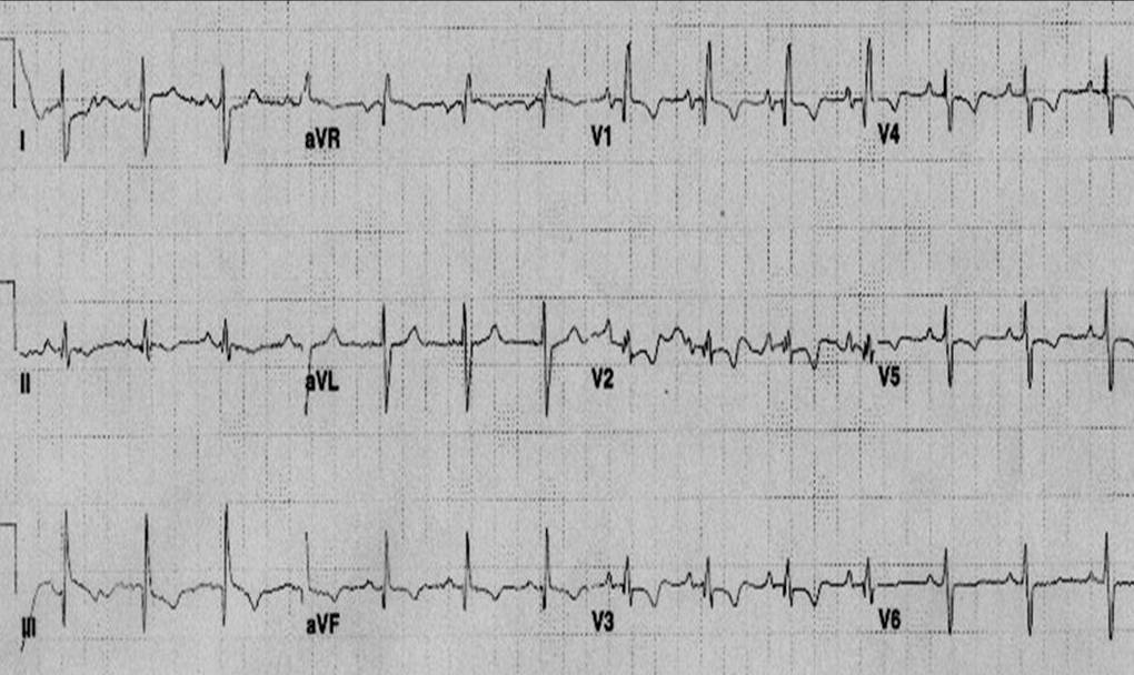 ECG of patient with pulmonary embolism showing S1 Q3 T3, Right bundle branch block pattern and flipped anterior T waves.