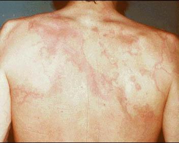 Rheumatic fever physical examination