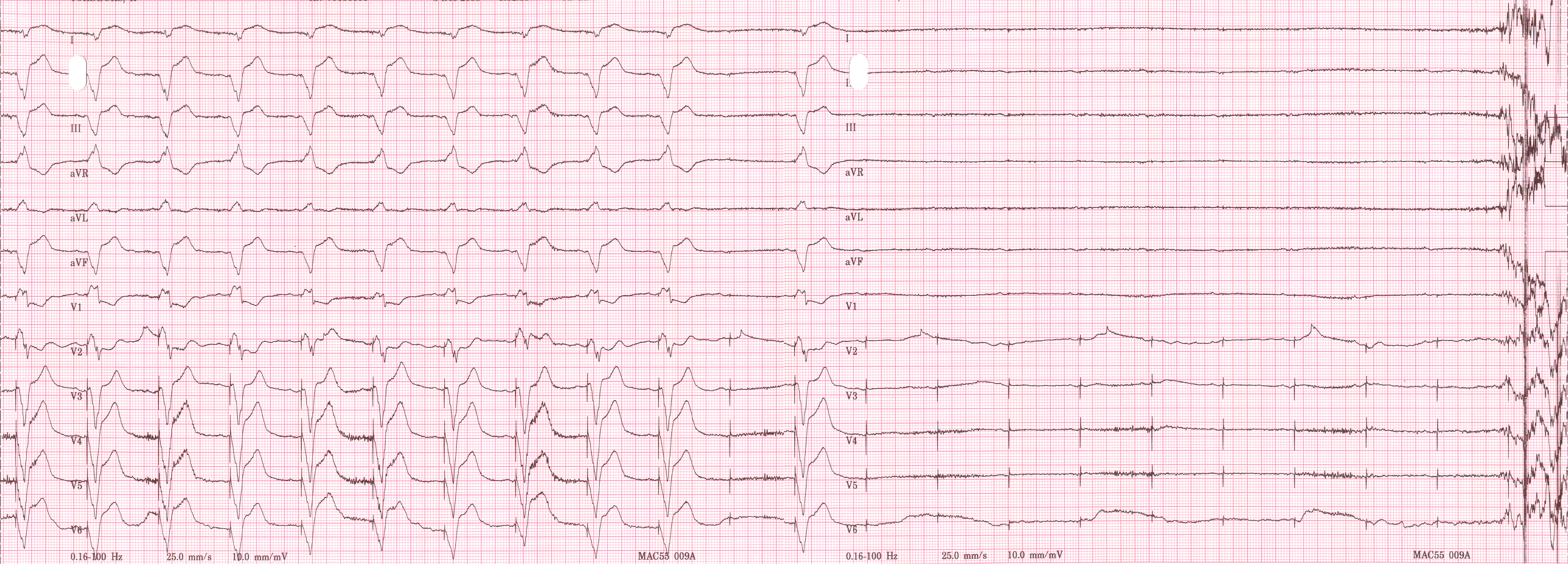 Pacemaker dependent asystole.jpg