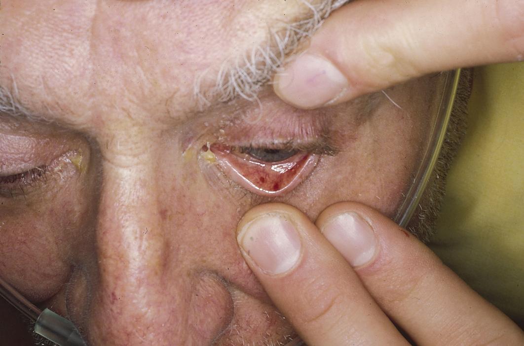 Petechiae Eye Related Keywords & Suggestions - Petechiae Eye Long ...