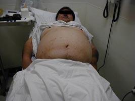 Abdominal Examination Wikidoc