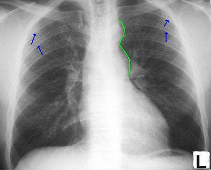 Coarctation of the Aorta Chest X-ray