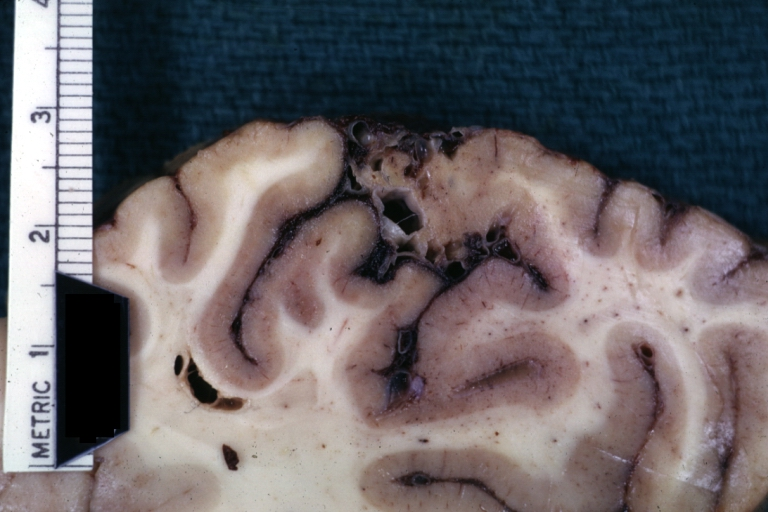 Cerebral arteriovenous malformation 1.jpeg