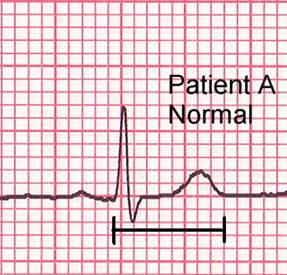 Normal QT interval.jpg