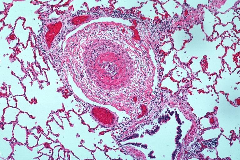 Polyarteritis Nodosa Natural Treatment