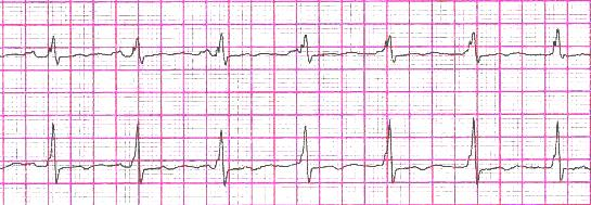 AV junctional rhythm with AV dissociation.jpg