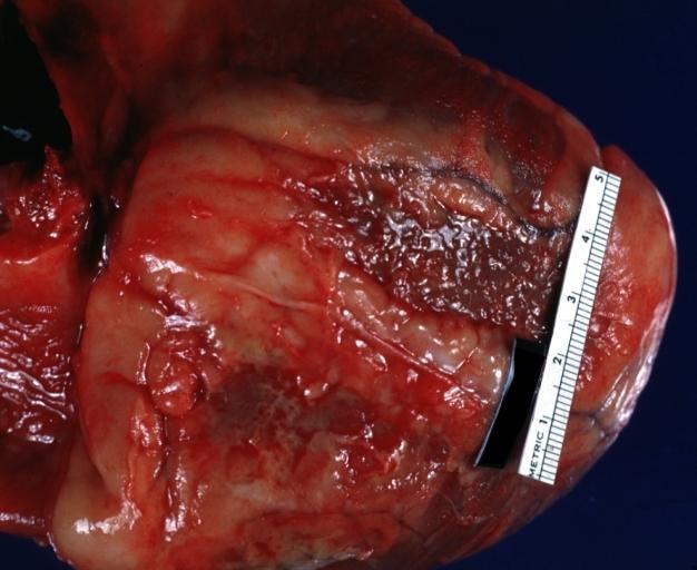 pericarditis pathophysiology