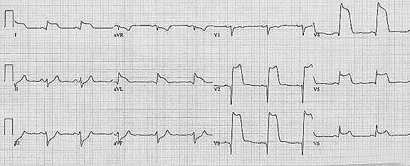 Source:http://pradubsukhum.com/ECG/MI/MI%20tables/Evolving%20ST%20T%20abnormalities%20in%20acute%20ST%20elevation%20MI.html