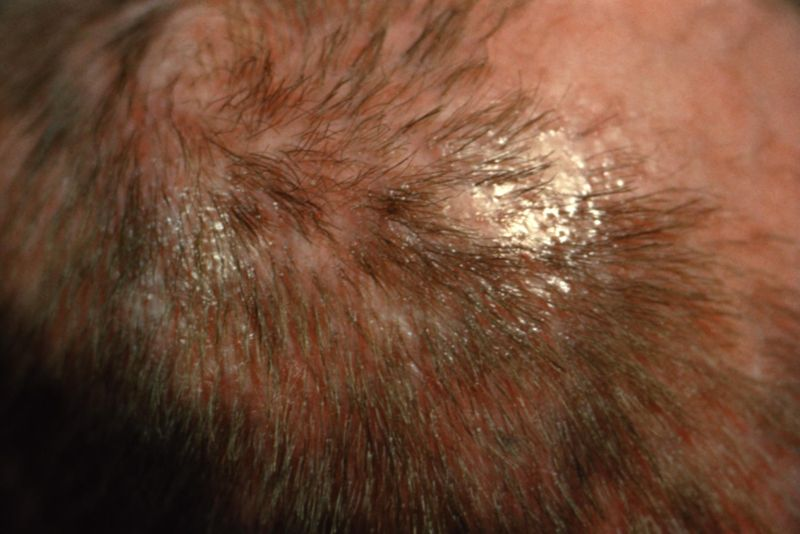 Natural Ringworm And Fungel Infection Cure